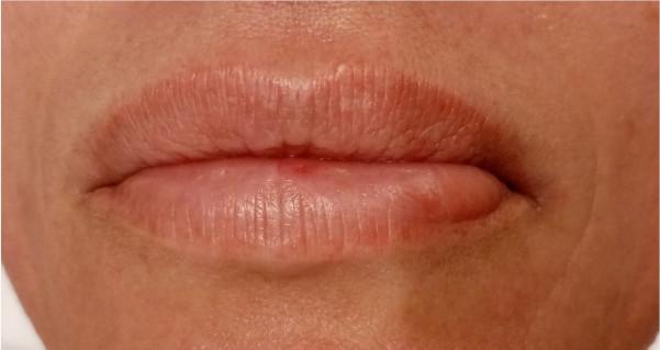 labios-antes-del-tratamiento-con-dermapen-en-xativa-Centro-Pylus