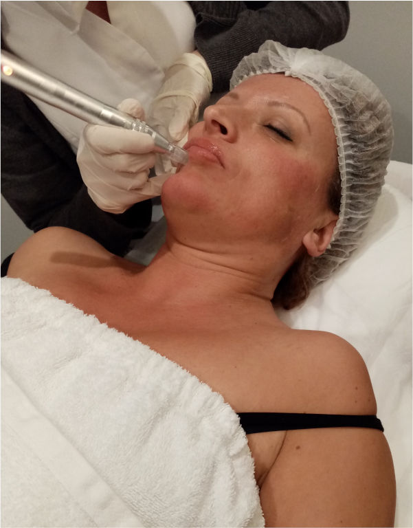 esteticista-de-centro-pylus-trata-con-dermapen-en-xativa-rostro-mujer