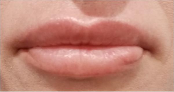 labios-despues-del-tratamiento-con-dermapen-en-xativa-Centro-Pylus