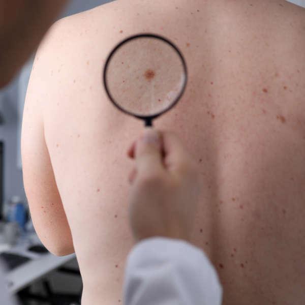 dermatologo-en-xativa-revisa-espalda-de-paciente-de-centro-medico-pylus