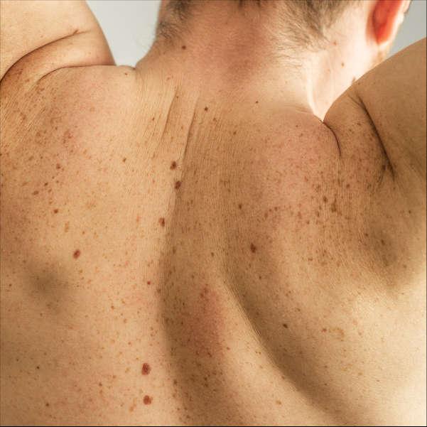 espalda-masculina-dermatologo-en-xativa-centro-pylus