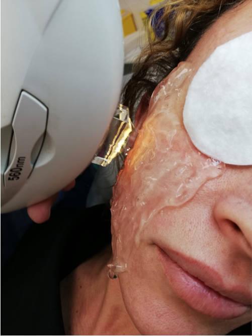 rostro-de-mujer-en-tratamiento-de-ipl-luz-intensa-pulsada-en-xativa-centro-estetico-pylus