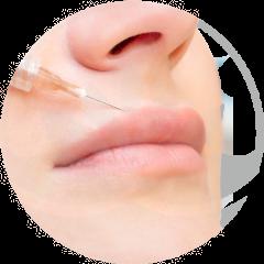 inyección-en-labio-femenino-para-hacer-relleno-de-acido-hialuronico-en-xativa-centro-pylus-concepto-de-medicina-estetica