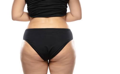 mujer-con-sobrepeso-con-grasa-celulitis-piernas-y-nalgas-obesidad-con-ropa-interior-negra-concepto-vacumterapia-en-xativa-centro-pylus